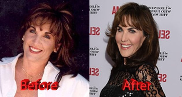 Robin McGraw Before and After 630x337