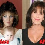 Robin McGraw Plastic Surgery 150x150