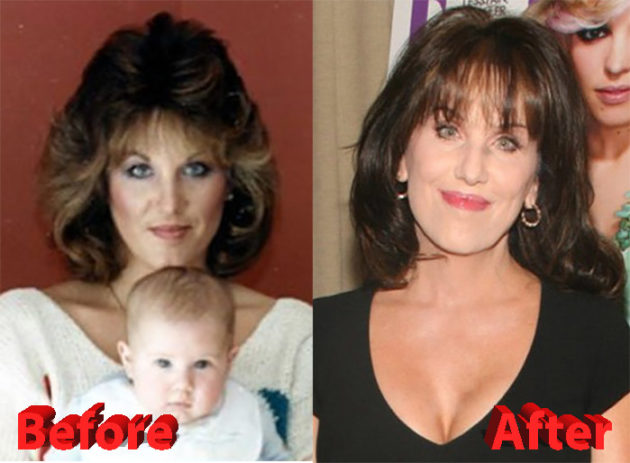Robin McGraw Plastic Surgery 630x463