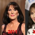 Robin McGraw Plastic Surgery Before and After 150x150