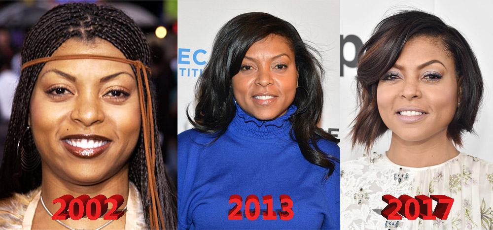 Taraji P Henson Plastic Surgery Before And After