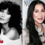 Cher before and after cosmetic surgery 150x150