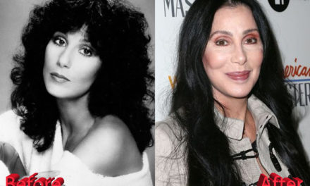 Cher Plastic Surgery : Just Too Much Of Procedures