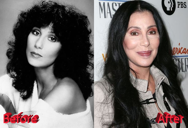Cher before and after cosmetic surgery