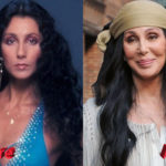 Cher before and after facelift surgery 150x150
