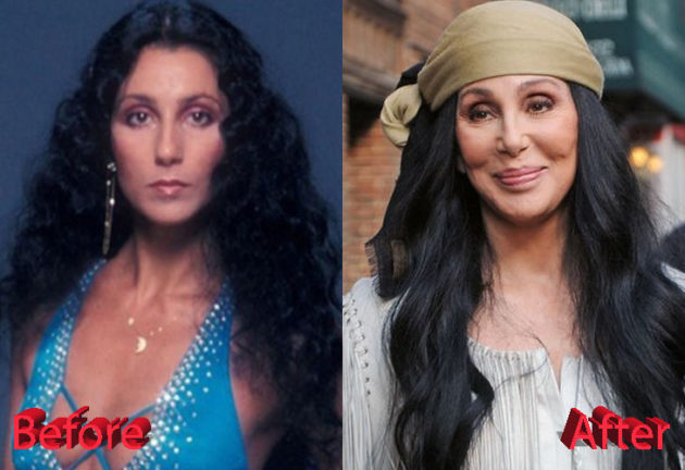 Cher before and after facelift surgery 630x432
