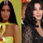 Cher before and after plastic surgery 150x150