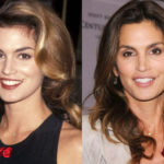 Cindy Crawford Before and After Cosmetic Surgery 150x150