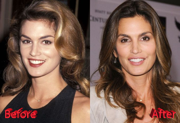 Cindy Crawford Before and After Cosmetic Surgery