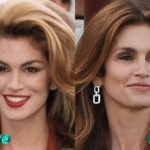 Cindy Crawford Before and After Facelift Surgery 150x150