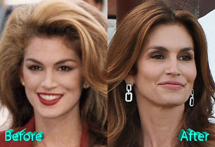 Cindy Crawford Before and After Facelift Surgery
