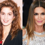 Cindy Crawford Before and After Plastic Surgery 150x150