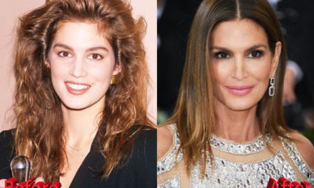 Cindy Crawford Plastic Surgery: Improved Look For The Fashion Icon