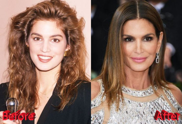 Cindy Crawford Before and After Plastic Surgery 630x432