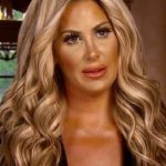 Kim Zolciak After Cosmetic Surgery 150x150
