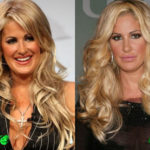 Kim Zolciak Before and After Cosmetic Surgery 150x150