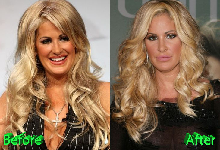 Kim Zolciak Before and After Cosmetic Surgery