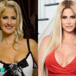 Kim Zolciak Before and After Multiple Surgery 150x150