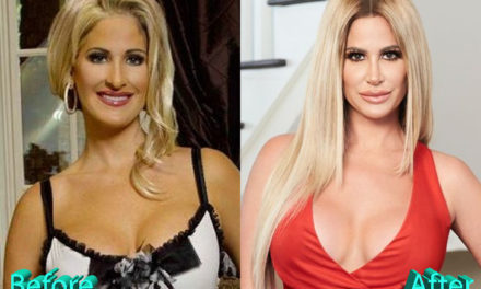 Kim Zolciak Plastic Surgery: All Nips And Tucks For The TV Star