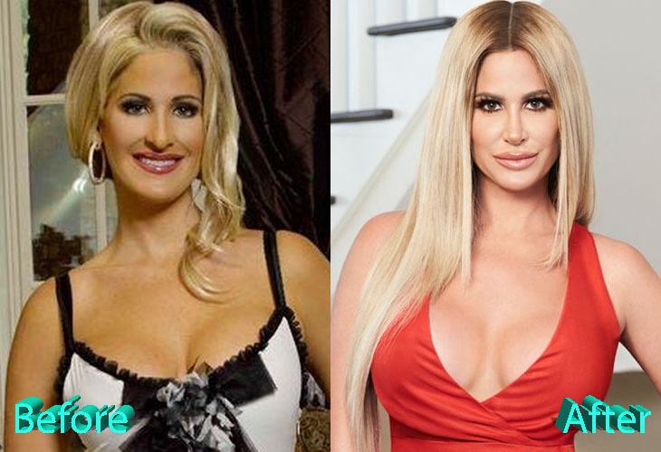 Kim Zolciak Before and After Multiple Surgery