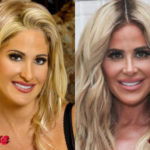 Kim Zolciak Before and After Plastic Surgery 150x150