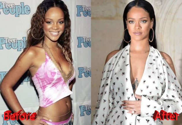 Rihanna Before and After Cosmetic Surgery 630x432