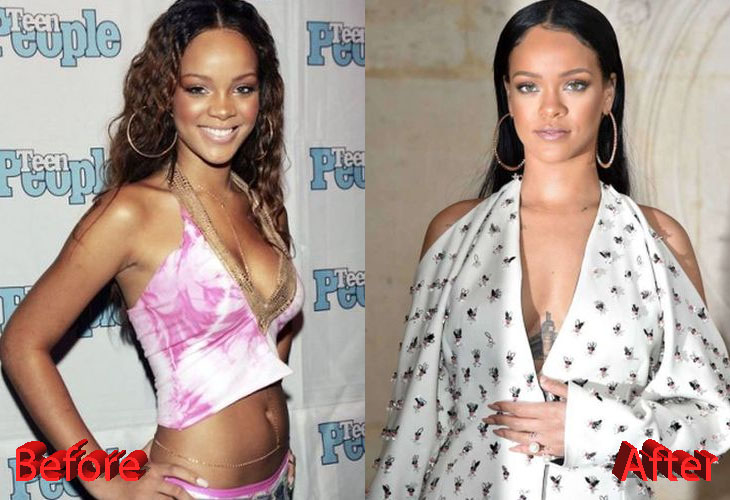 Rihanna Before and After Cosmetic Surgery