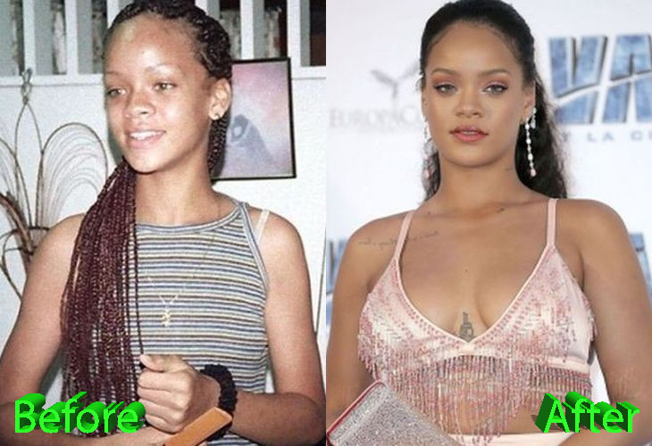 Rihanna Before and After Plastic Surgery