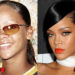 Rihanna Before and After Surgery Procedure 150x150