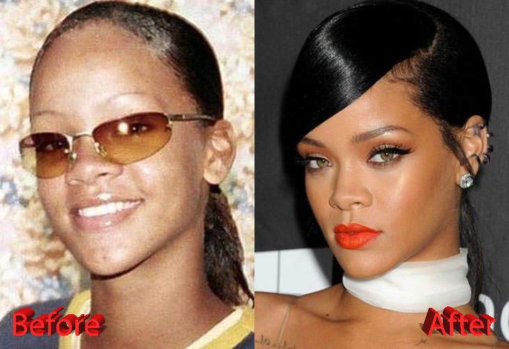 Rihanna Before and After Surgery Procedure