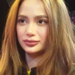 Arci Munoz After Plastic Surgery 150x150