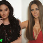 Arci Munoz Before and After Cosmetic Surgery 150x150