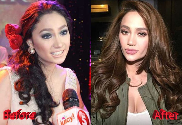 Arci Munoz Before and After Plastic Surgery 630x432