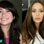 Arci Munoz Before and After Surgery Procedure 150x150