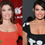 Kimberly Guilfoyle Before and After Cosmetic Surgery 150x150