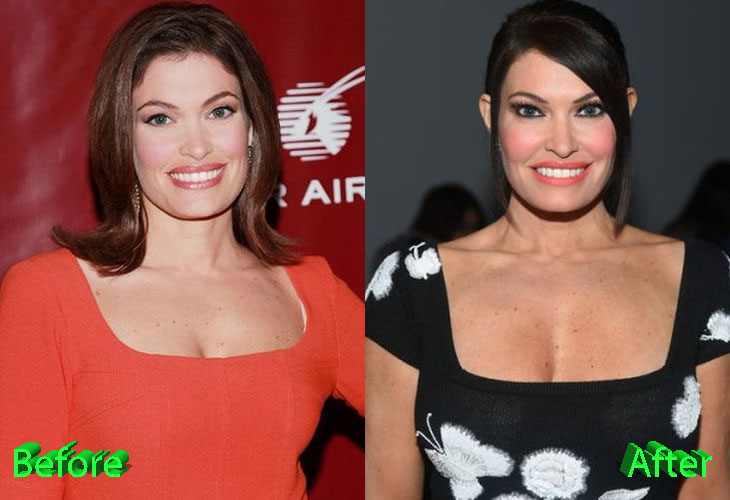 Kimberly Guilfoyle Before and After Cosmetic Surgery