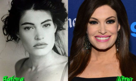 Kimberly Guilfoyle Plastic Surgery: A New Youth For News Anchor