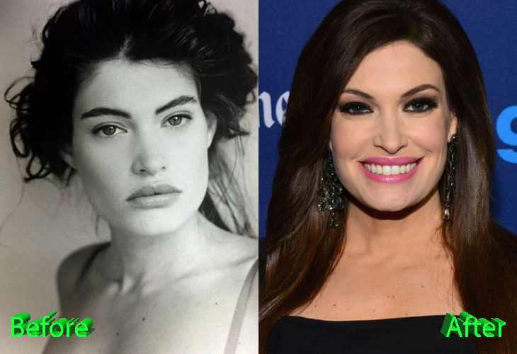 Kimberly Guilfoyle Before and After Plastic Surgery