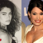 Kimberly Guilfoyle Before and After Surgery Procedure 150x150