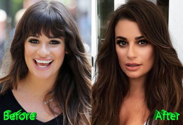 Lea Michele Before and After Nose Job Procedure 630x432