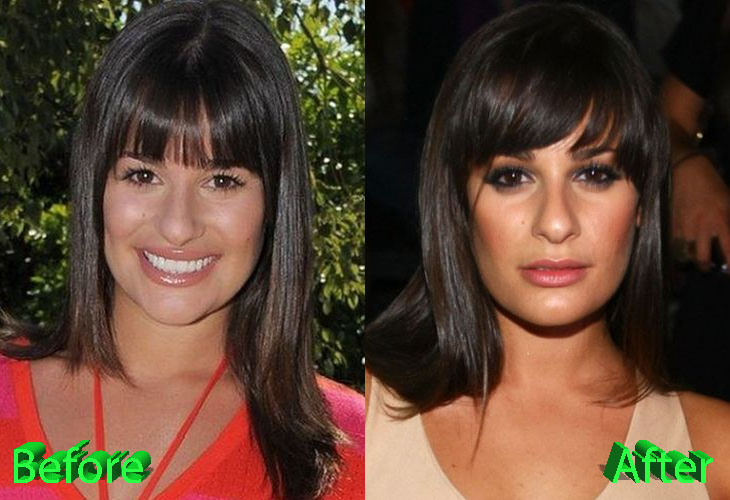 Lea Michele Before and After Nose Job Surgery