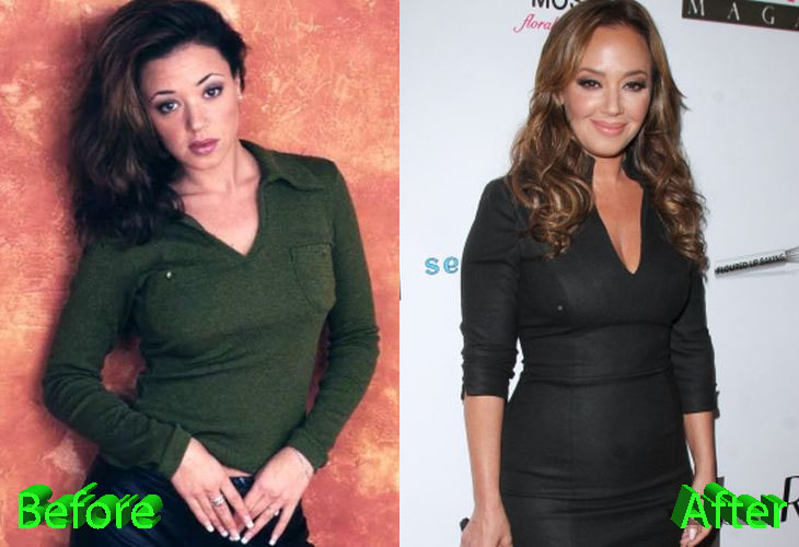 Leah Remini Before and After Cosmetic Surgery