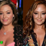 Leah Remini Before and After Plastic Surgery 150x150