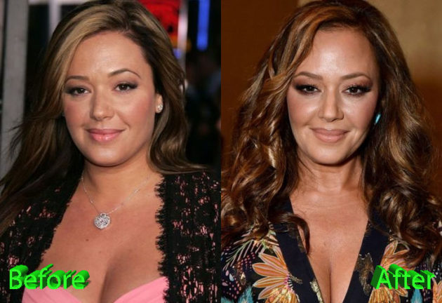 Leah Remini Before and After Plastic Surgery 630x432