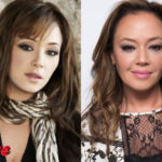 Leah Remini Before and After Surgery Procedure 150x150