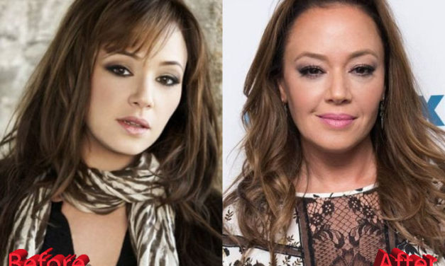 Leah Remini Plastic Surgery: Forever Young Leah