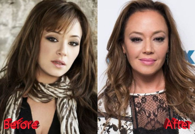 Leah Remini Before and After Surgery Procedure 630x432
