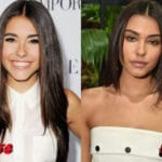 Madison Beer Before and After Lip Job Procedure 150x150