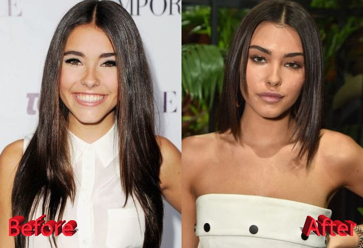 Madison Beer Before and After Lip Job Procedure