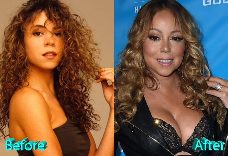 Mariah Carey Before and After Boob Job Surgery